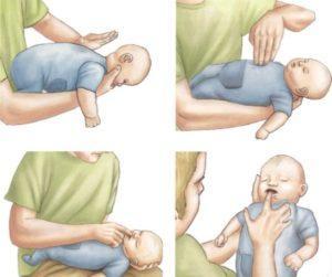 Что делать, если подавился ребенок?